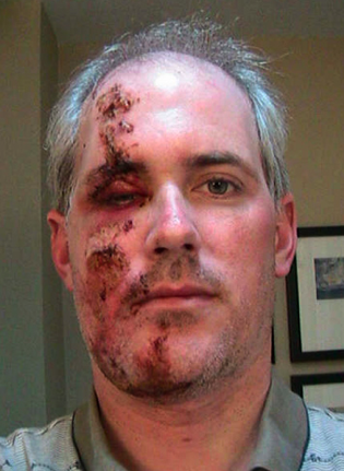 Dad got a little too gnarly for his own good on that frontside slasher.  P: Tribune Online.